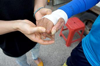 손마디와 손등의 근육이 피아노 건반 위에 손을 올려 놓은 모양으로 굳어 유연성과 근력을 위해 재활 치료 중인 한빈이