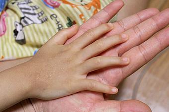 여리디 여린 예원이 손등을 가만히 들여다보면 옅은 흰점을 발견할 수 있습니다. 수백 개의 주사바늘 자국이랍니다.